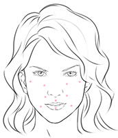 Dermal Fillers - Bath Facial Aesthetics of Bath